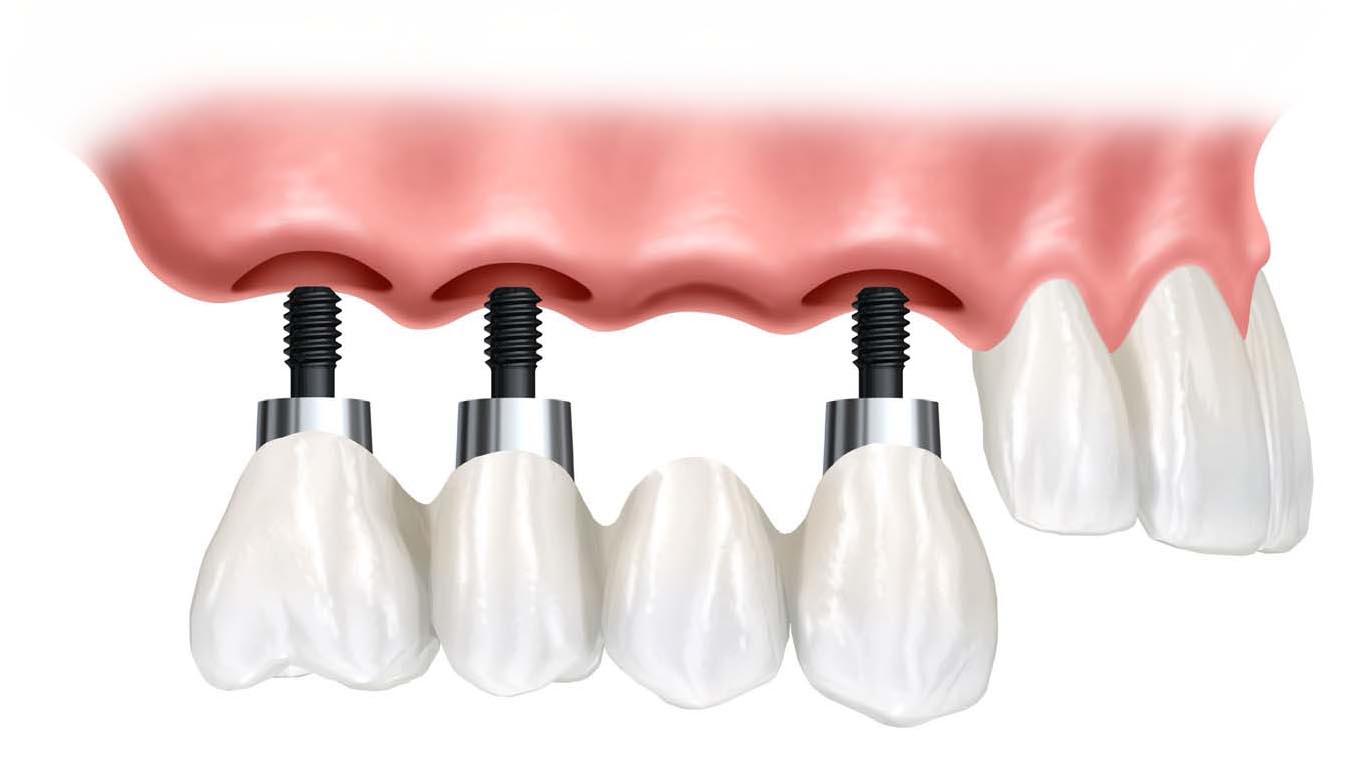 implantustu