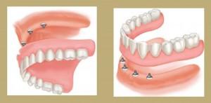 implantustuprotez