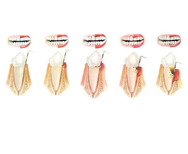 periodontoloji (1)